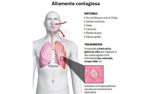 Vitamina C mata bacterias de la tuberculosis resistente a fármacos