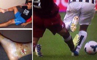 Así quedó el tobillo de Carlos Tevez tras esta terrible falta [VIDEO]