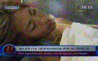 Chimbote: joven cortó el rostro a su pareja porque bailó con otro en Año Nuevo