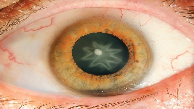Imagen del hombre de Austria que recibió un fuerte golpe en el ojo y desarrolló cataratas. (Foto: The New England Journal of Medicine)