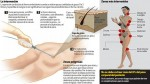 Liposucción: ¿Cuáles son sus mayores riesgos? - Noticias de pamela montes