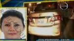 Mujer baleada frente al aeropuerto tiene proyectil en la cabeza - Noticias de maria urata losttanau