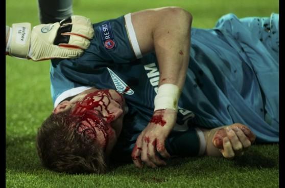 Hubocan del Zenit y las dramáticas imágenes de su lesión