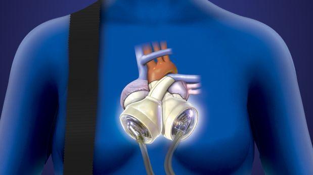 Resultado de imagen para corazon artificial 2014
