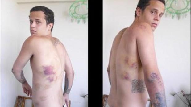 El desgarrador testimonio de un joven torturado en Venezuela
