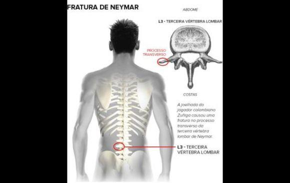 Neymar fuera del Mundial: esta es la lesión del brasileño