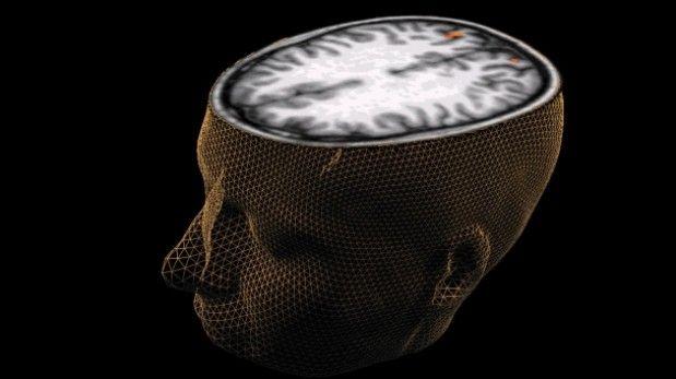 Once cosas que le hacen daño a tu cerebro
