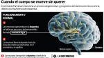 ¿Qué sucede en el cerebro de alguien con el mal de Parkinson? - Noticias de suicidios