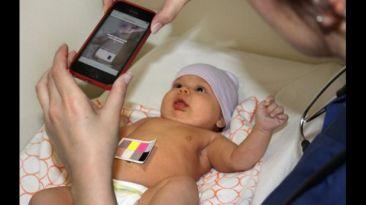 Esta app detecta en minutos ictericia en neonatos