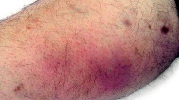 Cinco infecciones que se pueden contraer en un vestuario
