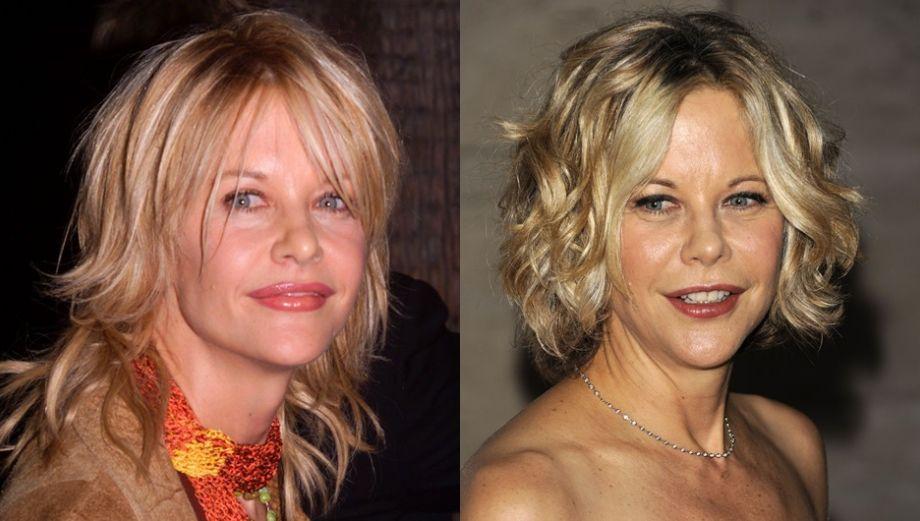 Famosos con cirugías: este es el antes y después en imágenes