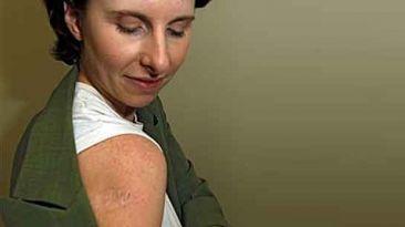 Desarrollan tratamiento para el melanoma con células madres