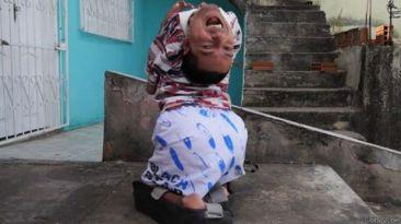 La valiente vida del brasileño que nació con la cabeza al revés