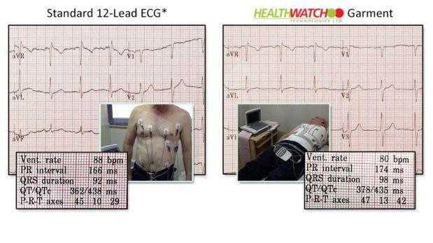 (Foto: Health Watch Technology)