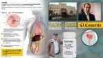 Lo que debes saber de la Hepatitis C en Perú [Foto interactiva] - Noticias de pildora