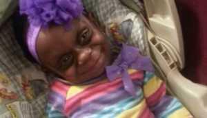Facebook: madre defiende de burlas a hija con mal genético