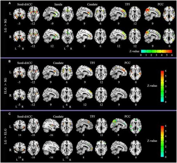 (Foto: Frontiers in Human Neuroscience)