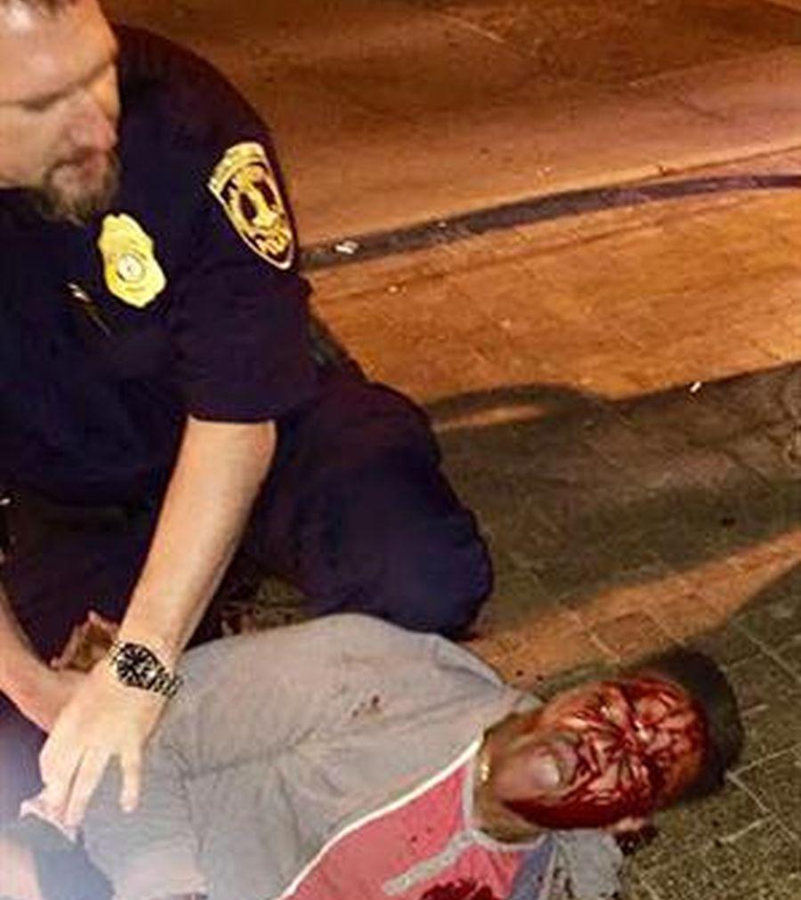 Martese Johnson, al ser agredido por la policía. (AP)