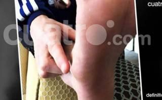 Lionel Messi: así está el pie del crack del Barcelona