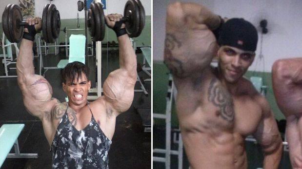 Casi pierde los brazos por parecerse a Hulk