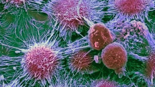 Se puede reemplazar el tecnecio por un elemento que emita una radiación más potente y que destruya los tejidos circundantes, en particular las células cancerígenas.