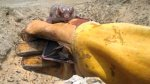 Loreto: Minsa confirma muerte de tres niños por rabia humana - Noticias de campaña de salud