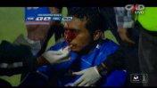 Terrible: Corcuera sufrió corte y fue sacado en ambulancia