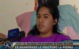 Chorrillos: mujer acusa a ex pareja de golpiza y fracturas