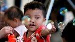 Operarán gratis a 70 niños y adultos con labio leporino - Noticias de labio leporino