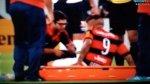 Paolo Guerrero: esto informó Flamengo de su lesión - Noticias de paolo guerrero
