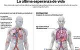 Nuevo corazón artificial móvil estabiliza a pacientes críticos