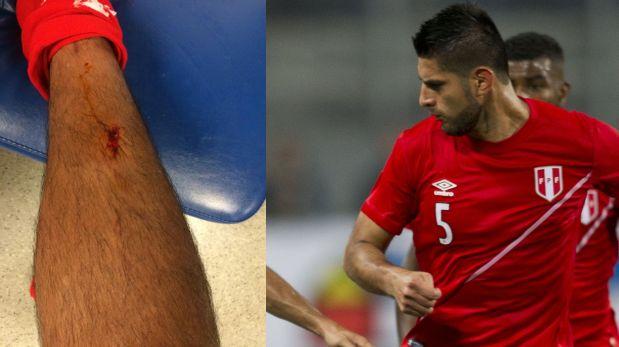 Así terminó la pierna de Zambrano. (Foto: Twitter)