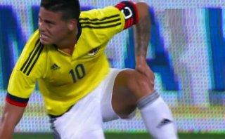 James Rodríguez: mira la jugada de su lesión ante Perú (VIDEO)
