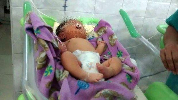 Chimbote: un bebe nació con dos narices y necesita ayuda