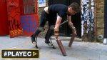 La extraña vida del hombre-cabra británico [VIDEO] - Noticias de acid survivors trust international