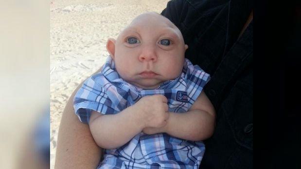 Jaxon 'Strong', el bebé con medio cerebro que conmovió al mundo