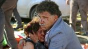 Turquía: Masacre en mitin por la paz deja 86 muertos en Ankara