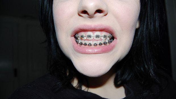 Científicos dan el primer paso para la regeneración de dientes