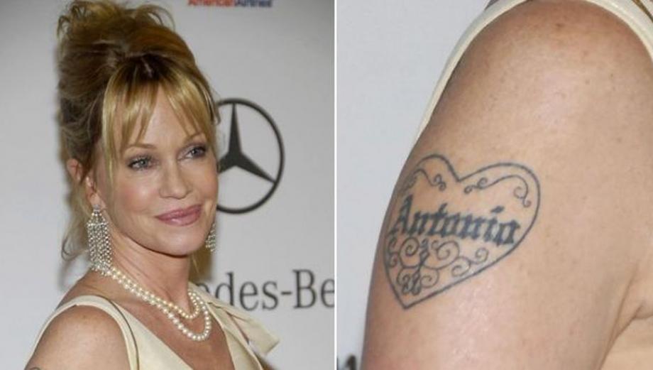 A propósito de Kaley Cuoco: famosos que borraron sus tatuajes