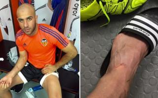 Luis Suárez le dejó estas heridas a jugador del Valencia