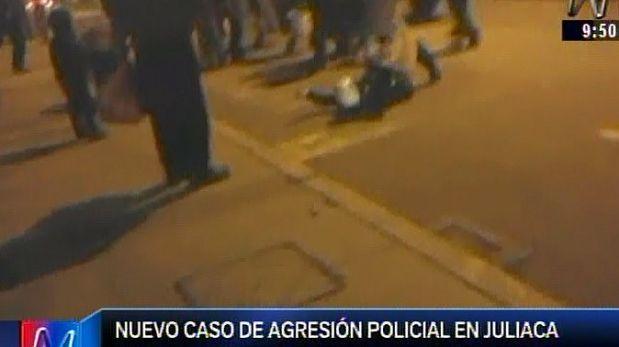 Juliaca: sujetos golpearon a una policía y le causaron fractura
