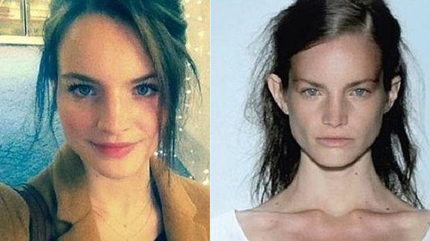 Las duras revelaciones de una ex modelo que sufrió anorexia