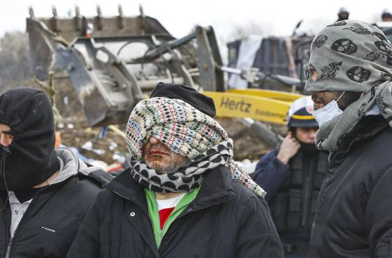 Refugiados se cosen la boca como extrema medida de protesta