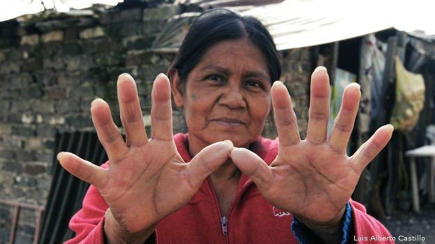 Agistina Joaquín, la más pobre de Ciudad de México. (Foto: Luis Alberto Castillo)