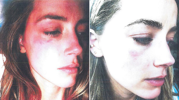 Fotografías de la primera agresión denunciada por Amber Heard. (Fotos: AP)