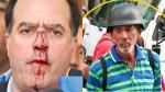 Venezuela: El rostro de los chavistas que agredieron a diputado - Noticias de personas exitosas