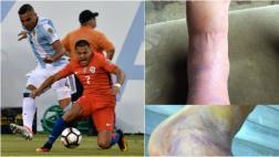 Alexis Sánchez publicó impactante foto de su tobillo maltrecho