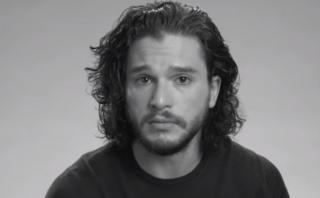 """Kit Harington audicionó en """"Game of Thrones"""" con un ojo morado"""