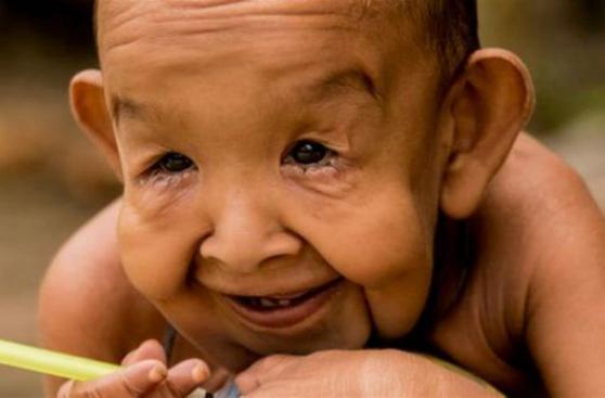 """La impresionante historia del """"Benjamin Button"""" de Bangladesh"""