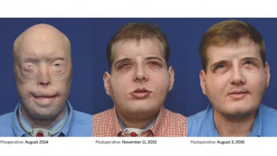 La increíble evolución del rostro de Patrick Hardison